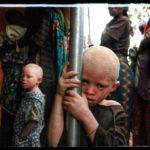 Истребление альбиносов в Африке